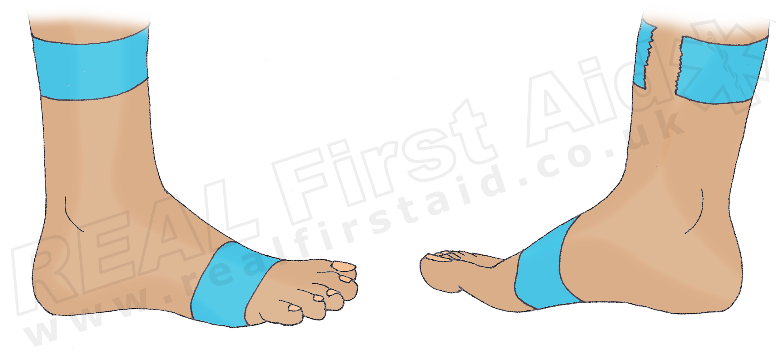 1. Place a strip of tape around the forefoot and around the mid-calf. Do not go around the mid-calf completely.
