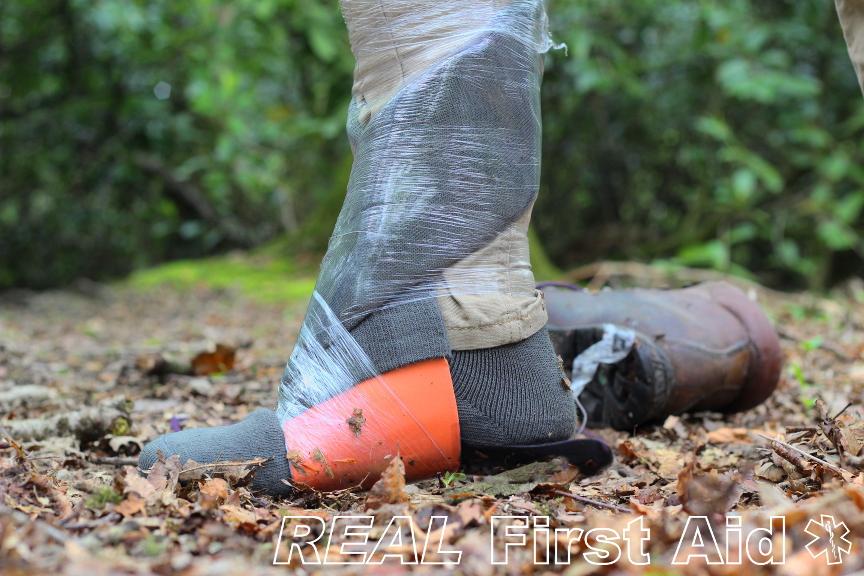 Ankle Stable 2.JPG