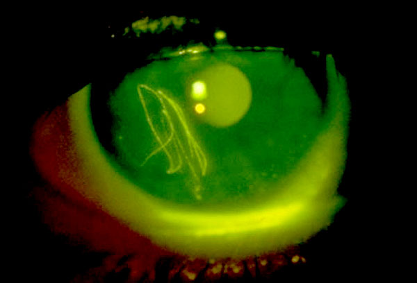 Corneal abrasion seen under fluorescein examination.