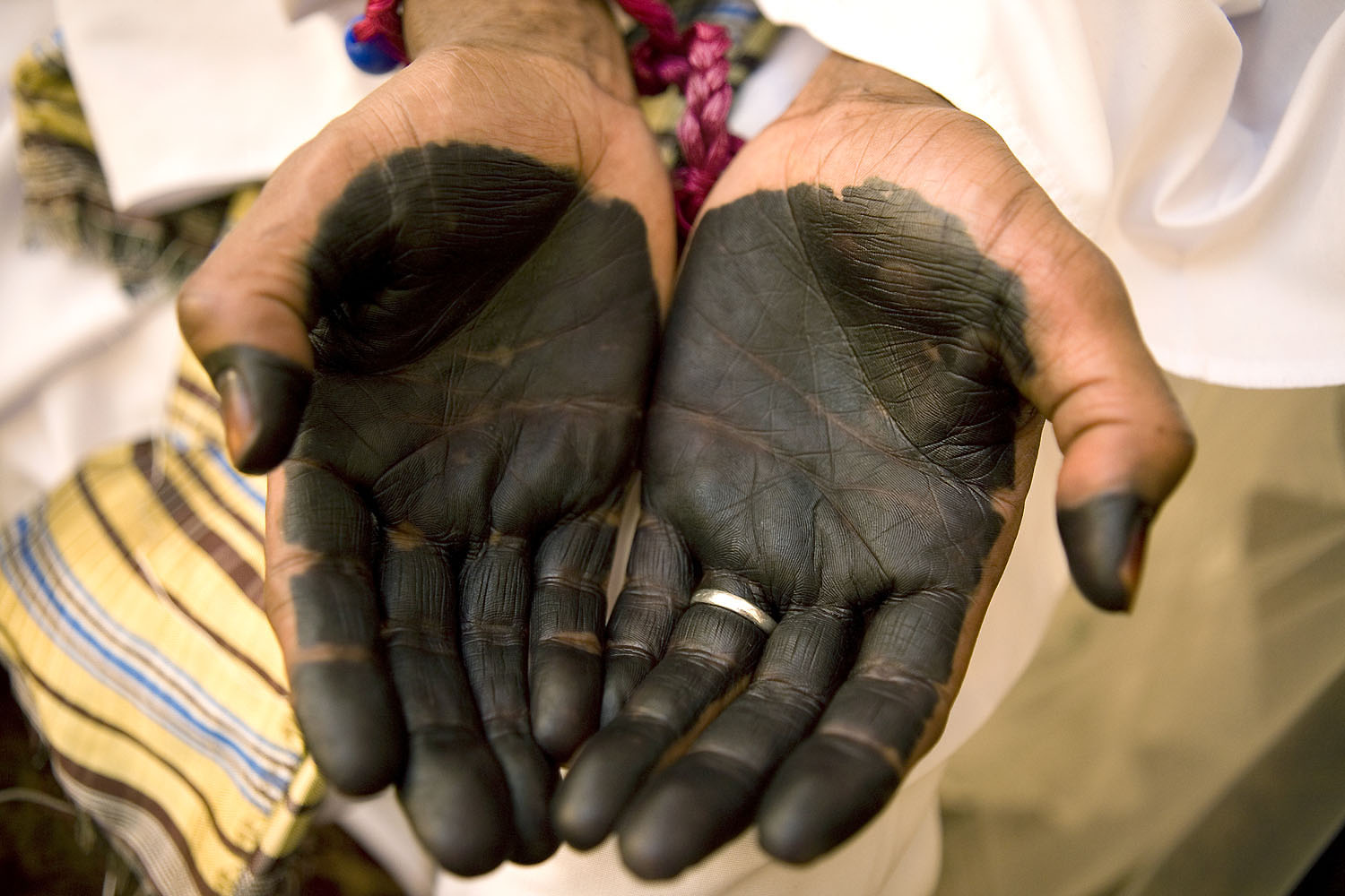 The groom's palms are painted with henna, a tradition for men on the days of their wedding and circumcision.