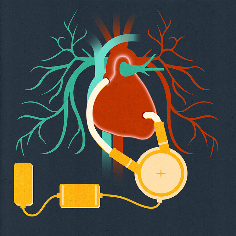 Title:  Ventricle Assist Devices keep patients alive while waiting for transplants  Project:  The Beat Goes On: 50 Years of Heart Health  Client:  Paid Post created in partnership with T Brand Studio for The New York Times, 2017