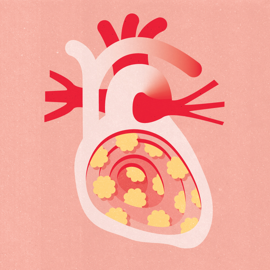 Project:    Cholesterol,    Client:     The Swedish Heart-Lung Foundation , 2019