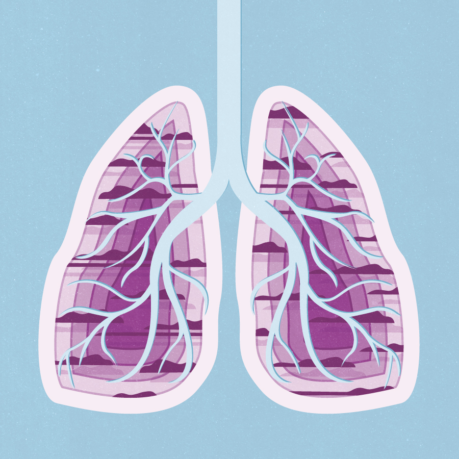 Project:    Cloudy Lungs,    Client:     The Swedish Heart-Lung Foundation , 2019