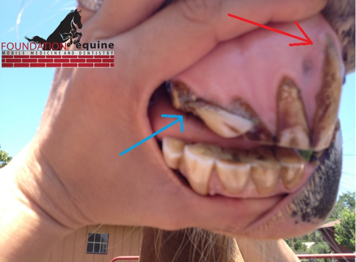 "Another severely affected horse. The blue arrow points to a broken, ""laid over"" tooth and the red arrow points to a tooth with hypercementosis (note the bulging and amount of exposed tooth)."