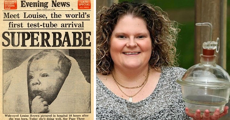 Louise Brown the world's first IVF baby