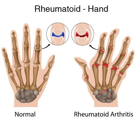 Rheumatoid Arthritis-Natural Support for Joint Pain