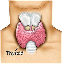 hypothyroidism - The hidden epidemic part 1