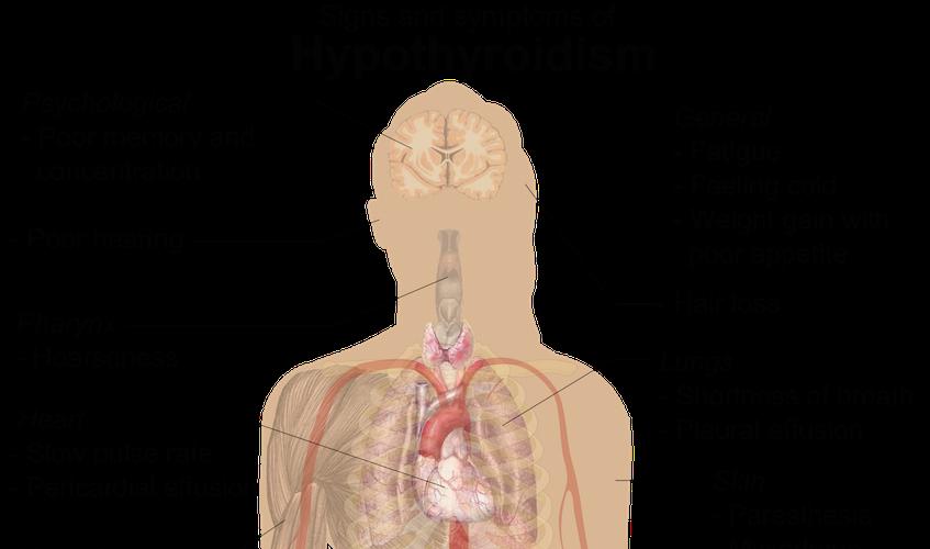 hypothyroidism - the hidden epidemic part 2