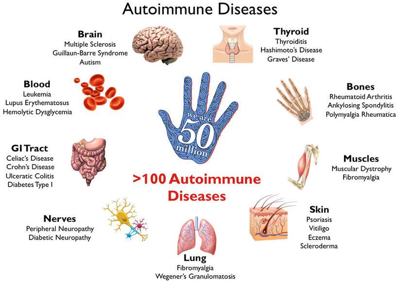 Autoimmune disease part 2