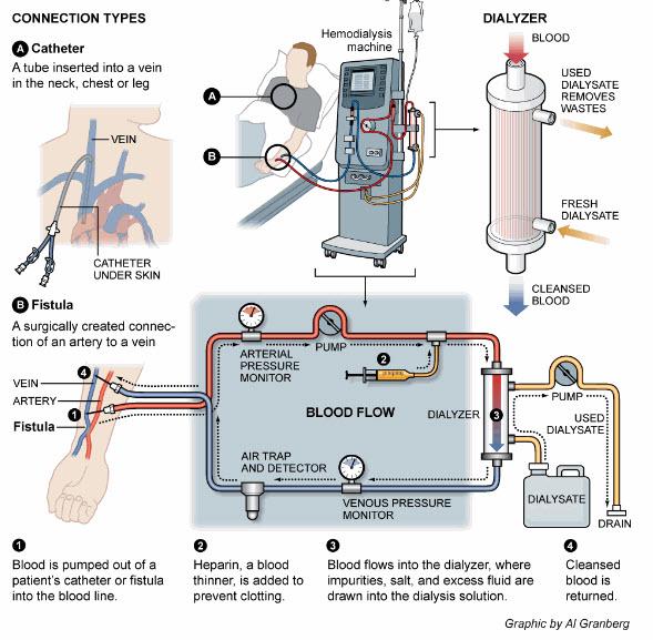 How Dialysis Works.jpg