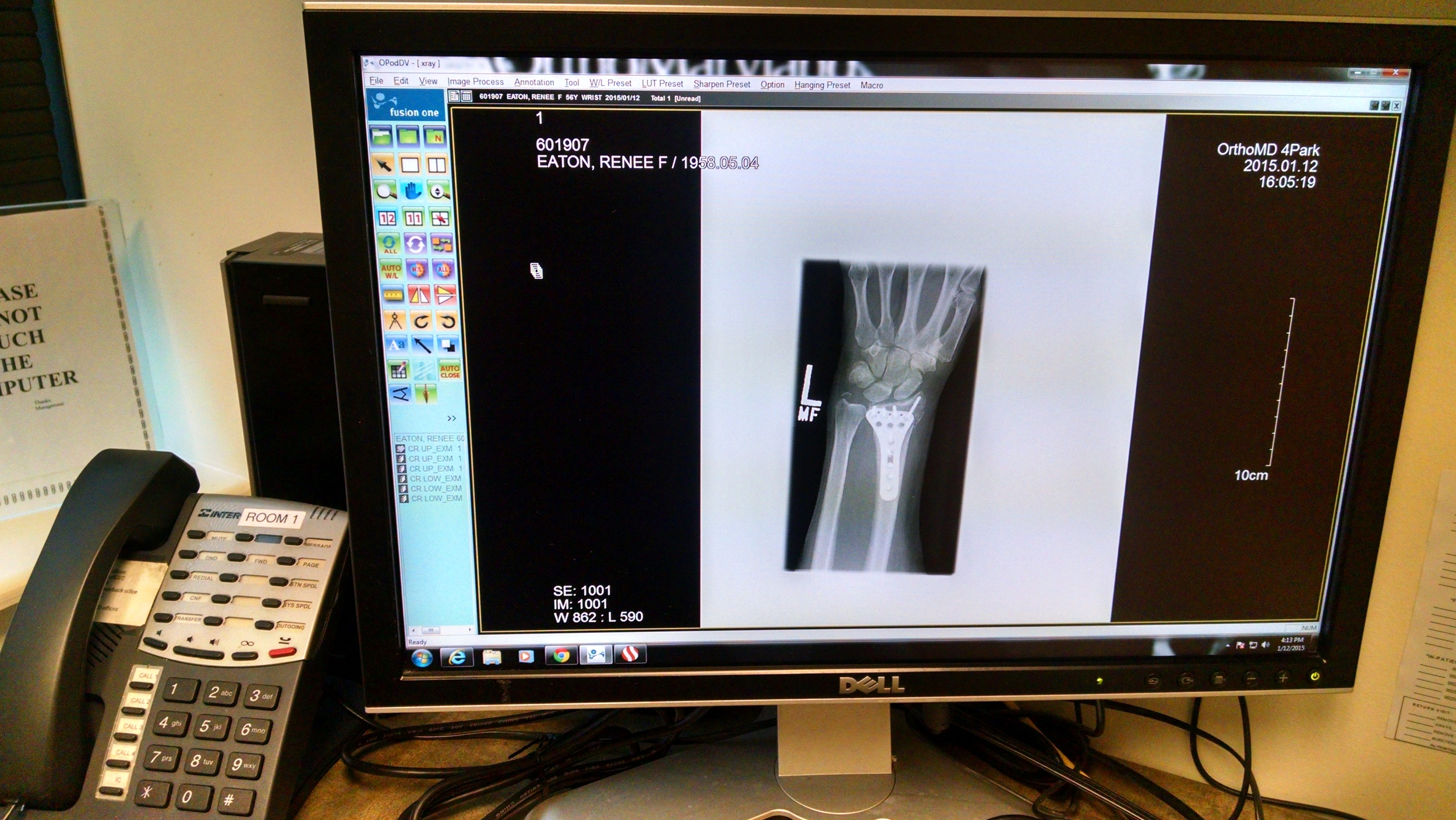 My post-op wrist via traditional Xray image.