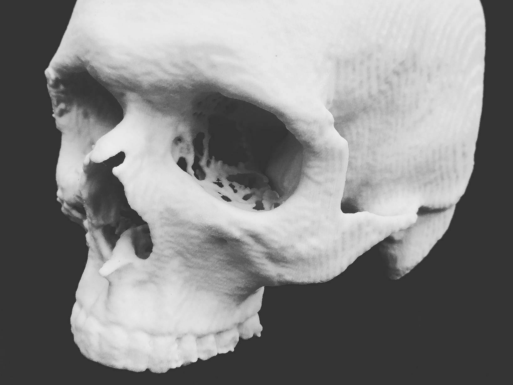 3d-printed-medical-skull