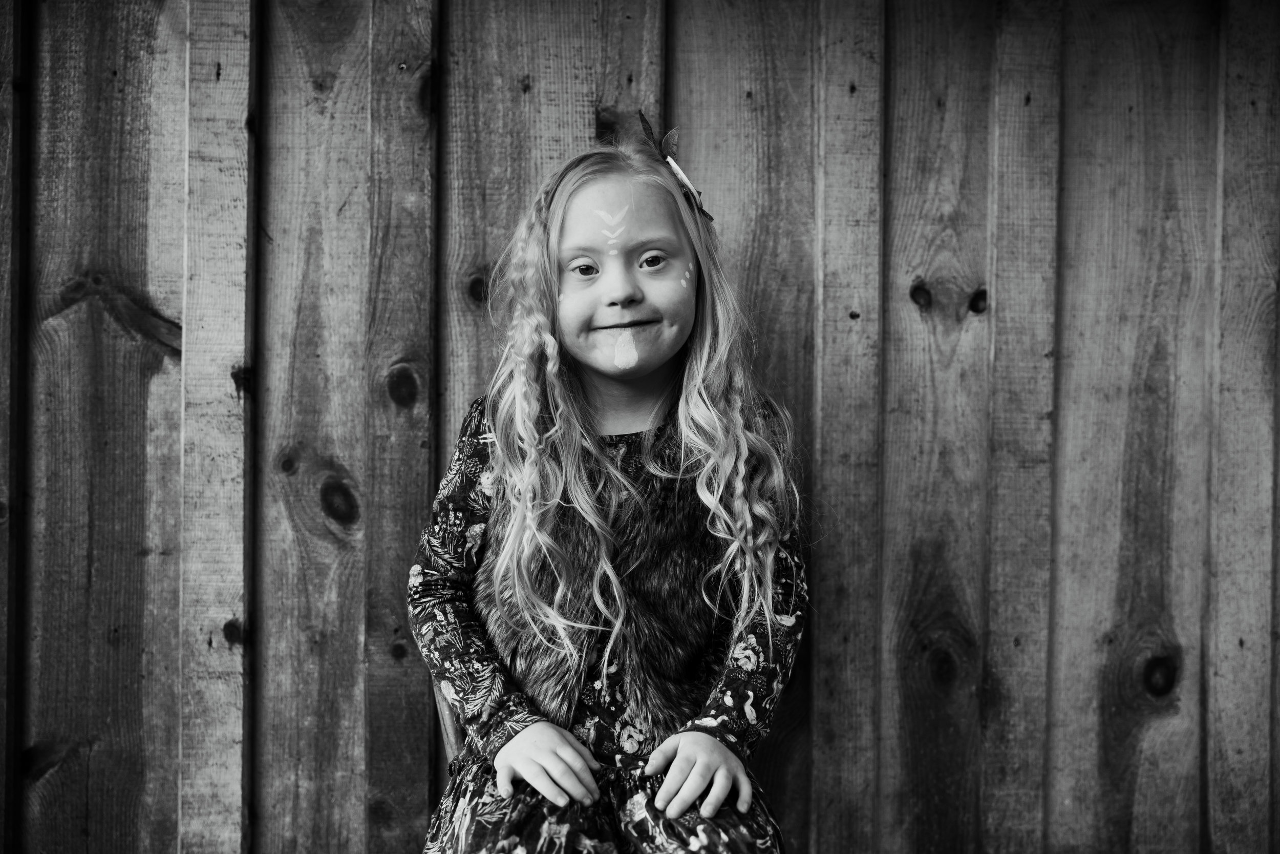 Little model Cora with downs syndrome