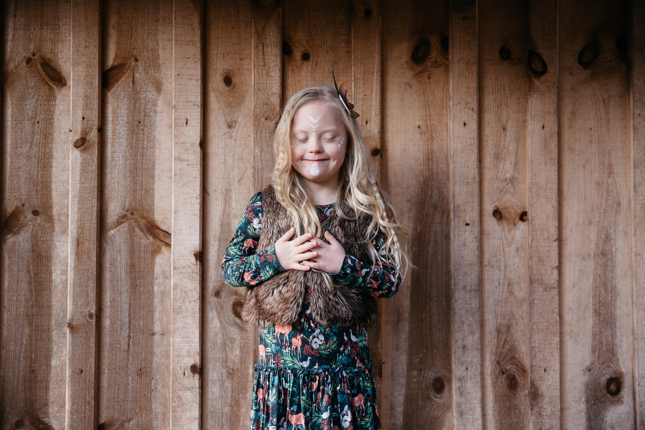 Model Cora with downs syndrome