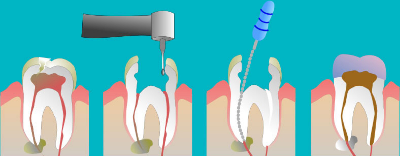 1367206530_495732266_3-Best-Root-Canal-Treatments-India-Services.jpg