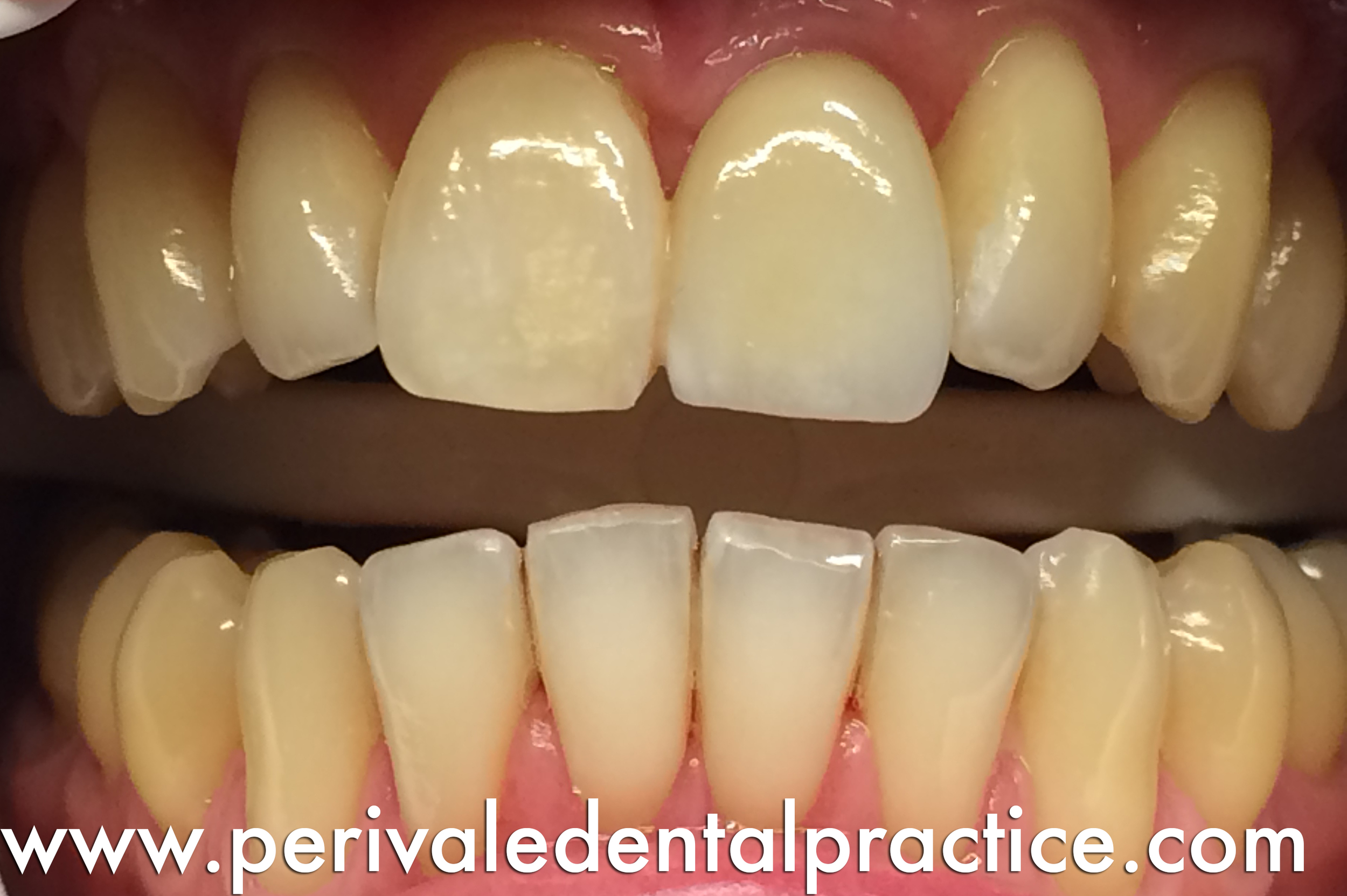 After treatment: Dental Implant placed