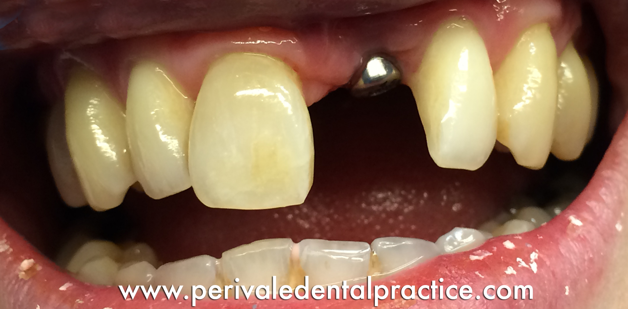 Before treatment: Missing central incisor