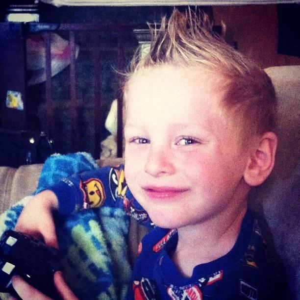 Ebin, diagnosed at age 2.