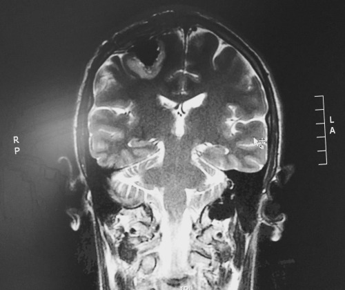 surgical resection, post-opp MRI