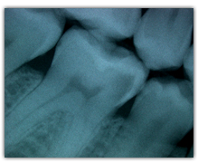 www.soprolife.com - See cavity (gray shadow) on right side of molar tooth.