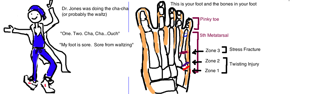 Jones Fracture, Broken 5th Metatarsal Bone can be a stress fracture or an acute fracture