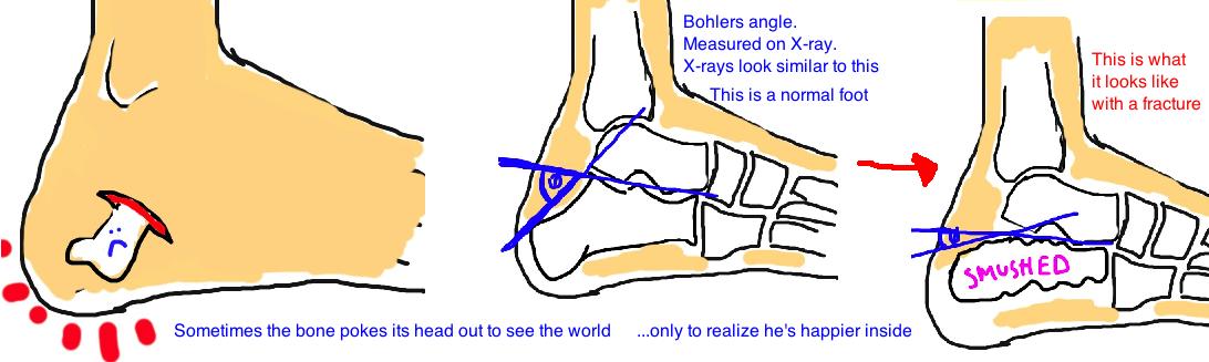 Calcaneus Fracture, Broken Heel Bone: severity is measured with Bohler's angle.