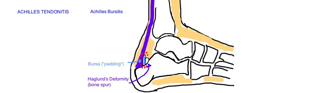 Achilles Buritis: A Haglund's Deformity is a bone spur that irritates the bursa causing inflammation.