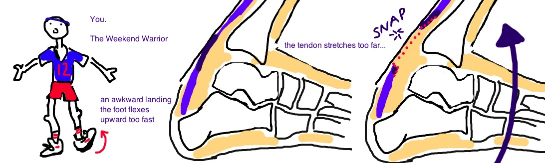 Achilles Tendon Rupture, Achilles Tear: occurs in weekend warriors.   Usually with activity.