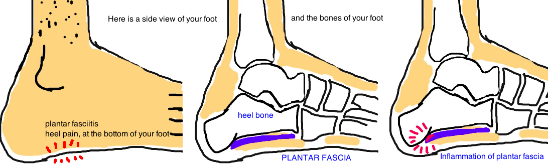Plantar Fasciitis: Plantar Fascia at the bottom of foot attaches to the heel.