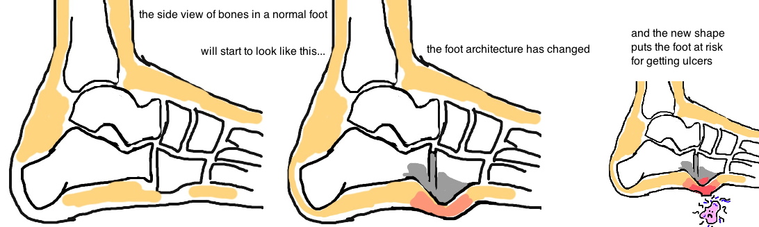 Charcot Foot: Remodeling Phase change in foot bone position encourages ulcerations.
