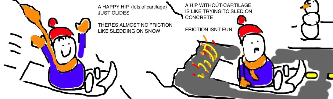 arthritis hip 2.jpg