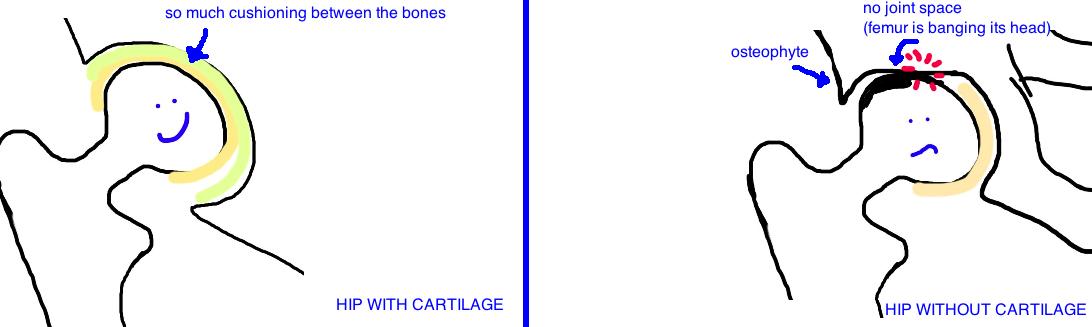 arthritis hip 3.jpg