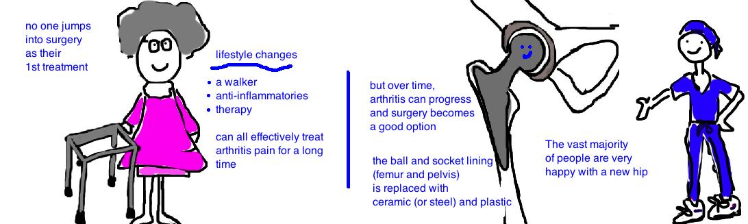 arthritis hip 4.jpg
