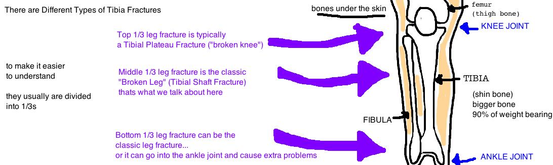shaft knee 5.jpg