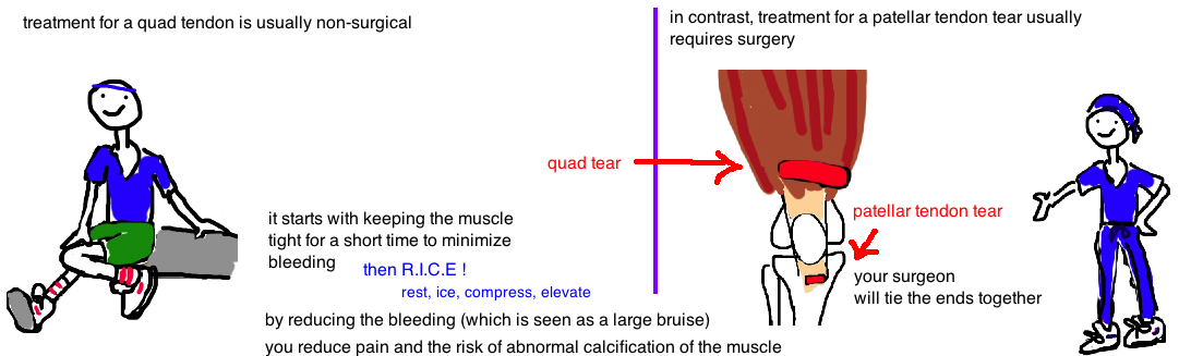quadraceps muscle tear patellar tendon tear