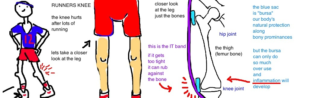 runners knee it band syndrome