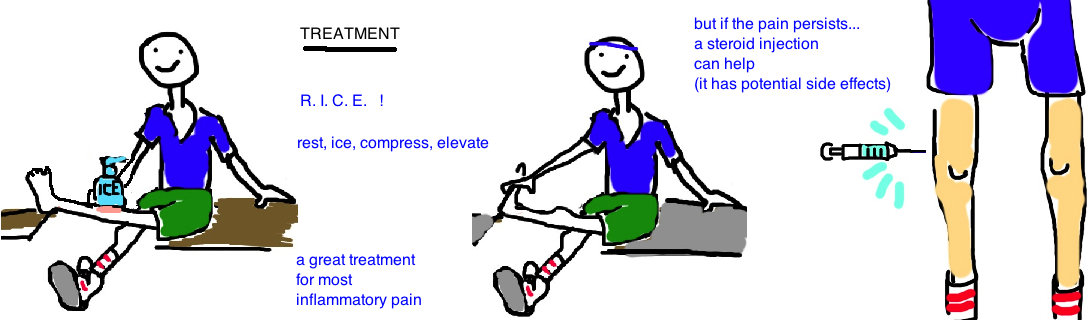 runners knee it band syndrome treatment