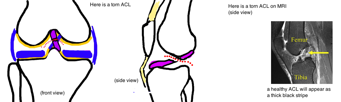 acl tear anterior cruciate ligament tear diagnosis on mri