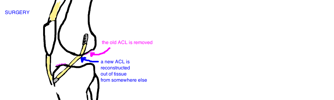 acl tear treatment anterior cruciate ligament treatment
