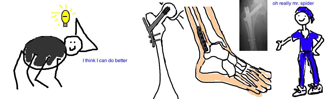 ORIF alternatives to stainless steel in orthopedics