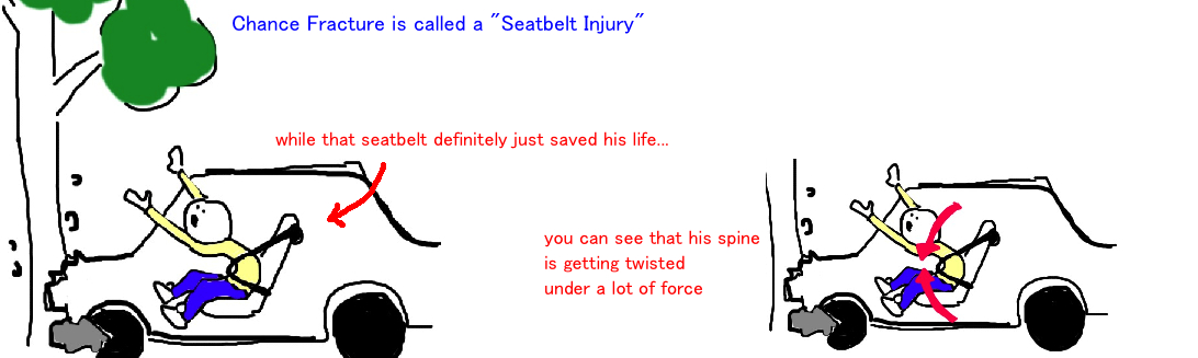 chance fracture, broken spine, flexion-distraction injury of the spine