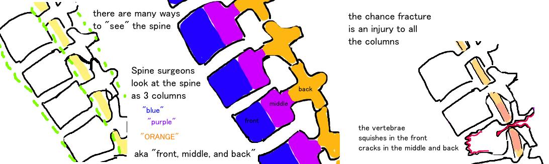 three column spine injury, chance fracture, broken spine, flexion-distraction injury of the spine