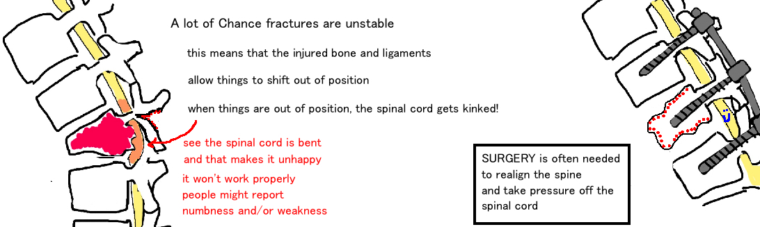 surgical treatment of chance fracture, flexion-distraction injury of the spine