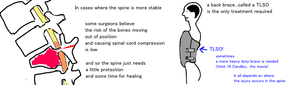 TLSO brace, treatment of chance fracture, flexion distraction spinal injury
