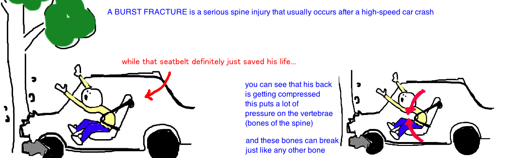 two column injury of the spine burst fracture broken spine