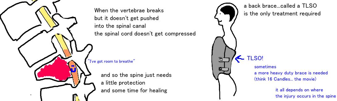 nonoperative treatment of burst fracture tlso brace