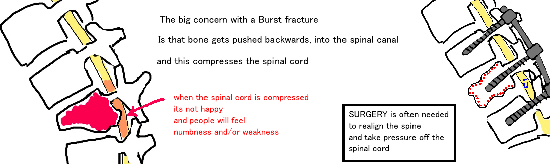 surgical treatment of a burst fracture