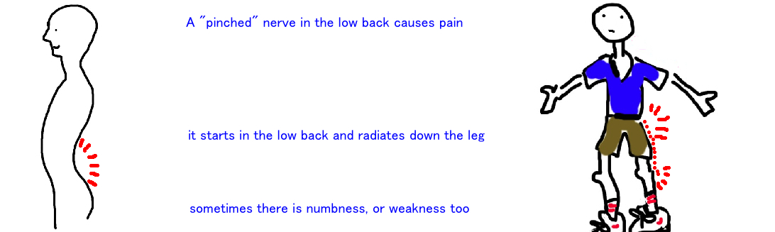 lumbar back pain
