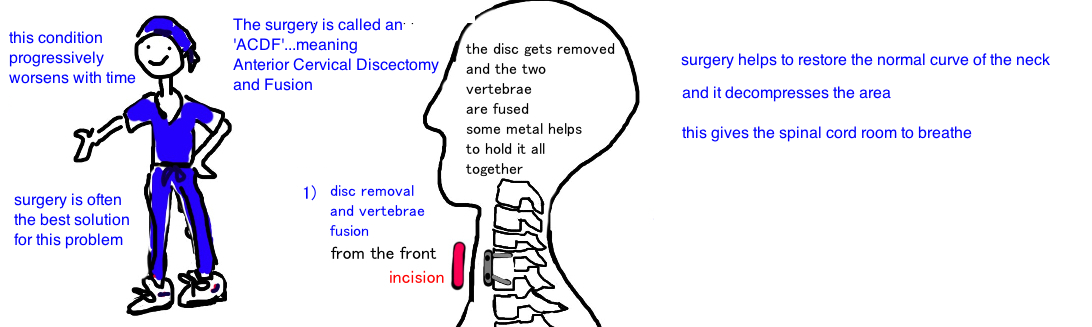 treatment for cervical myelopathy