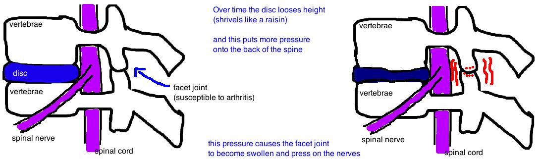 facaet hypertrophy spinal stenosis